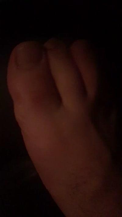 mon doight 2 pied